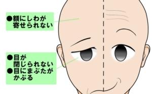 顔面神経麻痺の症状解説イラスト